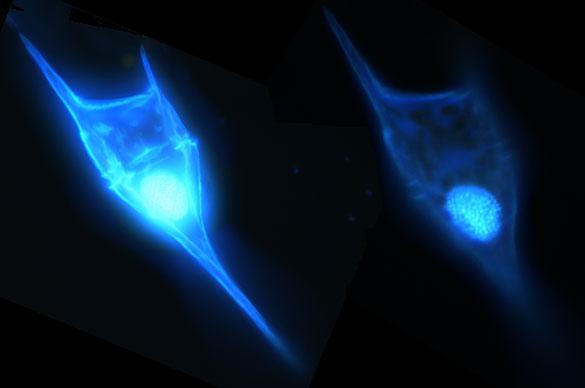 Dinoflagelado planctónico (observación bajo microscopio de fluorescencia)