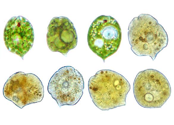 Microfotografías ópticas de células de P.brachykentron. Arriba a la izquierda el control, y el resto, ejemplares tratados con materia orgánica.