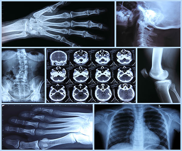 radiografia_N