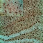 En la imagen se ven las células microgliales que participan de la respuesta inmune innata inflamatoria en el hipocampo, provenientes de cortes de cerebro de ratones alimentados con dieta grasa. En el recuadro, se ven a mayor aumento y se observa su morfología, que puede cambiar en función de la condición del ratón, aumentando su estado de activación.
