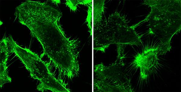 En ambas imágenes se observan células tumorales prostáticas teñidas con una sustancia que pone en evidencia las prolongaciones celulares o filopodios.