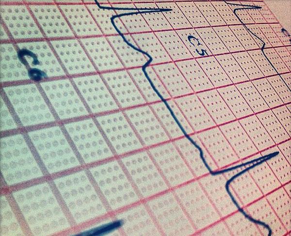 Un electrocardiograma -una herramienta sencilla y económica- puede ayudar a detectar si el cerebro posee una mínima conciencia. Foto: Adrian Clark/Flickr