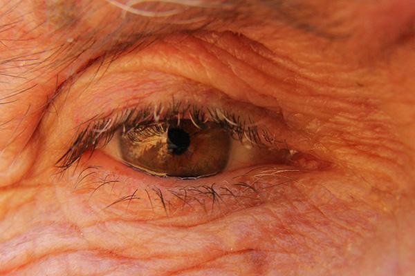 """La degeneración macular relacionada con la edad (DMRE) más frecuente, llamada """"seca"""", no tiene tratamiento. La otra forma (""""húmeda"""") se trata paliativamente mediante inyecciones intraoculares de anticuerpos, que deben repetirse todos los meses y que tienen un costo elevado."""